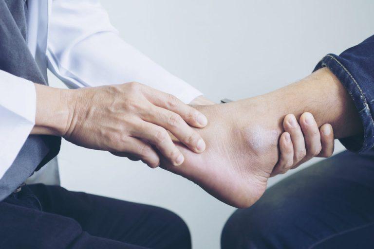 la santé des pieds